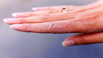 5 خوردنی شگفت انگیز برای رفع خشکی پوست