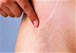 رژیم غذایی که به پوست آسیب می زند