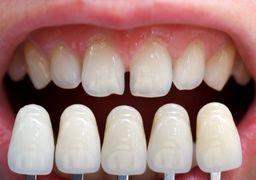بزرگترین دندان دیده شده یک انسان +تصاویر