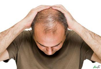 خوراکیهای ضد ریزش مو