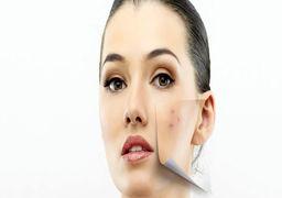 درمان قطعی لک صورت | روش های خانگی از بین بردن لک صورت
