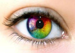 گودی زیر چشم، علت و درمان آن