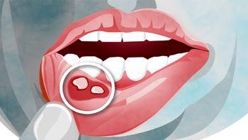 نشانه های مشکل دستگاه گوارش در دهان