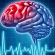 خبری نگران کننده از کووید 19/ کرونا باعث افزایش سکته مغزی می شود؟