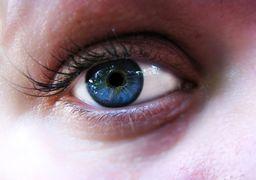 چند راهکار ساده و طبیعی برای رفع پف زیر چشم ها