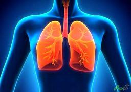 کاهش چشمگیر ظرفیت ریه بهبود یافتگان کرونا