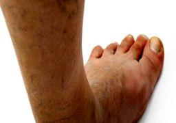 آمبولی(DVT): لخته شدن خون بعلت ارث، ایستادن و نشستن زیاد