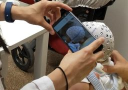 ارزیابی جمجمه نوزادان با موبایل