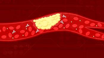 علت لخته شدن خون مبتلایان کرونا چیست؟