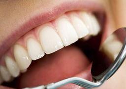 مقابله با «جرم دندان» بدون مراجعه به دندانپزشک