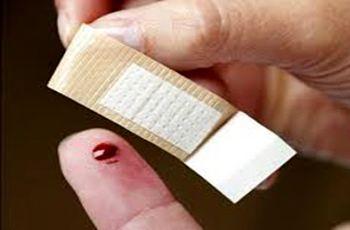 انتقال کرونا از طریق زخمها امکانپذیر است؟