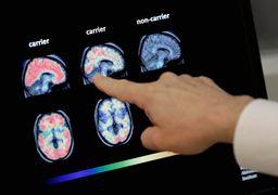 کشف داروی آلزایمر؟